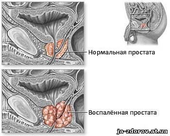 Патогенез острого простатита