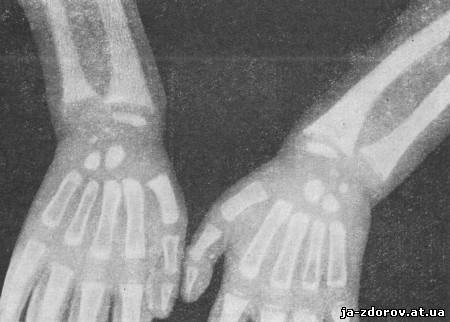 рентгенограммы костей
