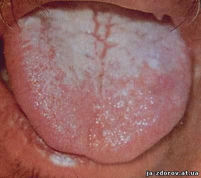 Язык при гриппе
