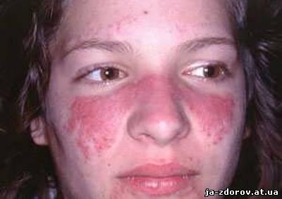 Эритематозный дерматит