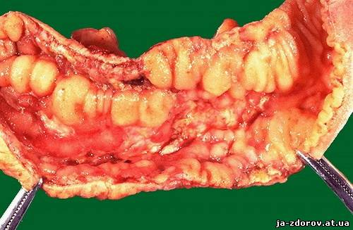 воспалительные очаги в виде гранулём