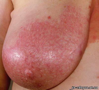 гиперемия и отёк железы