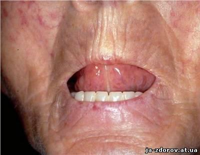 поражение кожи лица при склеродермии