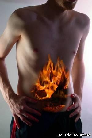 Синдромом раздражённого кишечника