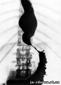 Контрастная рентгенография