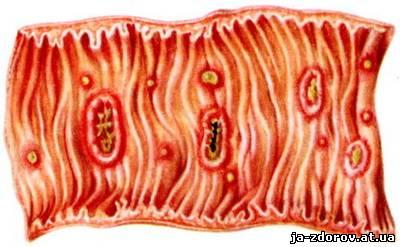 амебы у человека