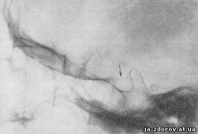Обызвествление сосудистых сплетений задних рогов