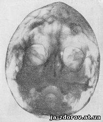 Аномалии лицевого черепа