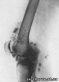 Остеохондроматоз суставов у животных анатомия костей и суставов