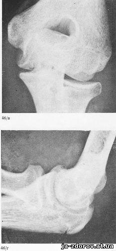 гематоз локтевого сустава