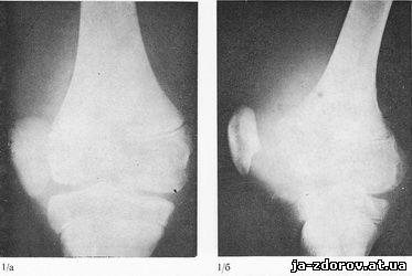 правого коленного сустава гемартроз коленного сустава