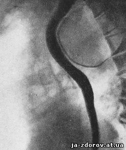 Почечная недостаточность паразиты аневризма
